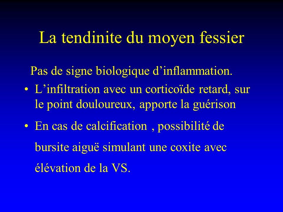 La tendinite du moyen fessier Pas de signe biologique dinflammation. Linfiltration avec un corticoïde retard, sur le point douloureux, apporte la guér