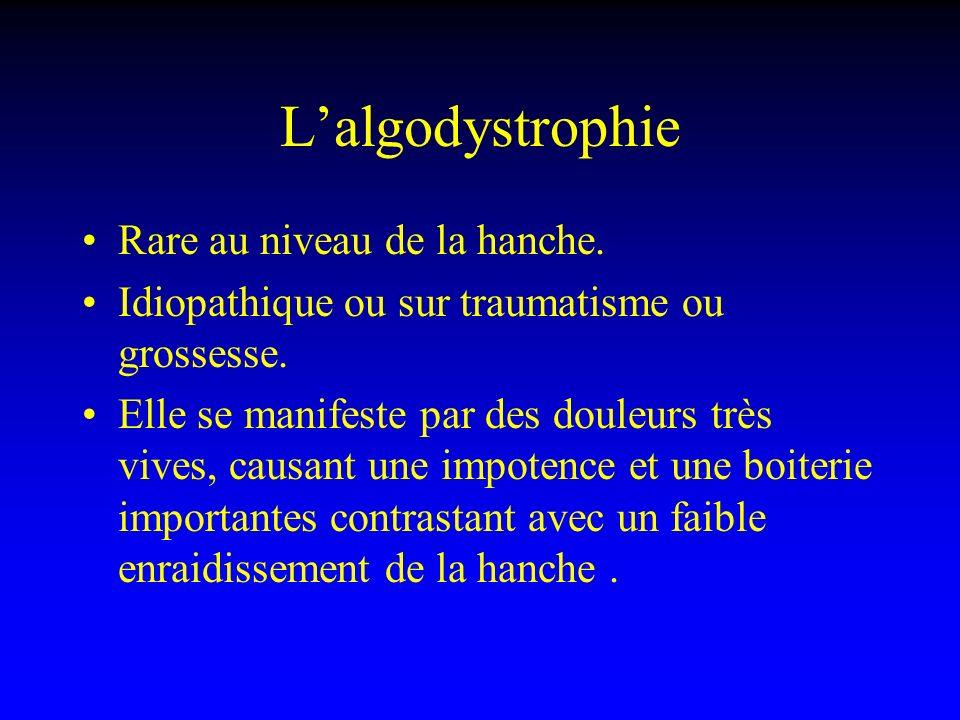Lalgodystrophie Rare au niveau de la hanche. Idiopathique ou sur traumatisme ou grossesse. Elle se manifeste par des douleurs très vives, causant une