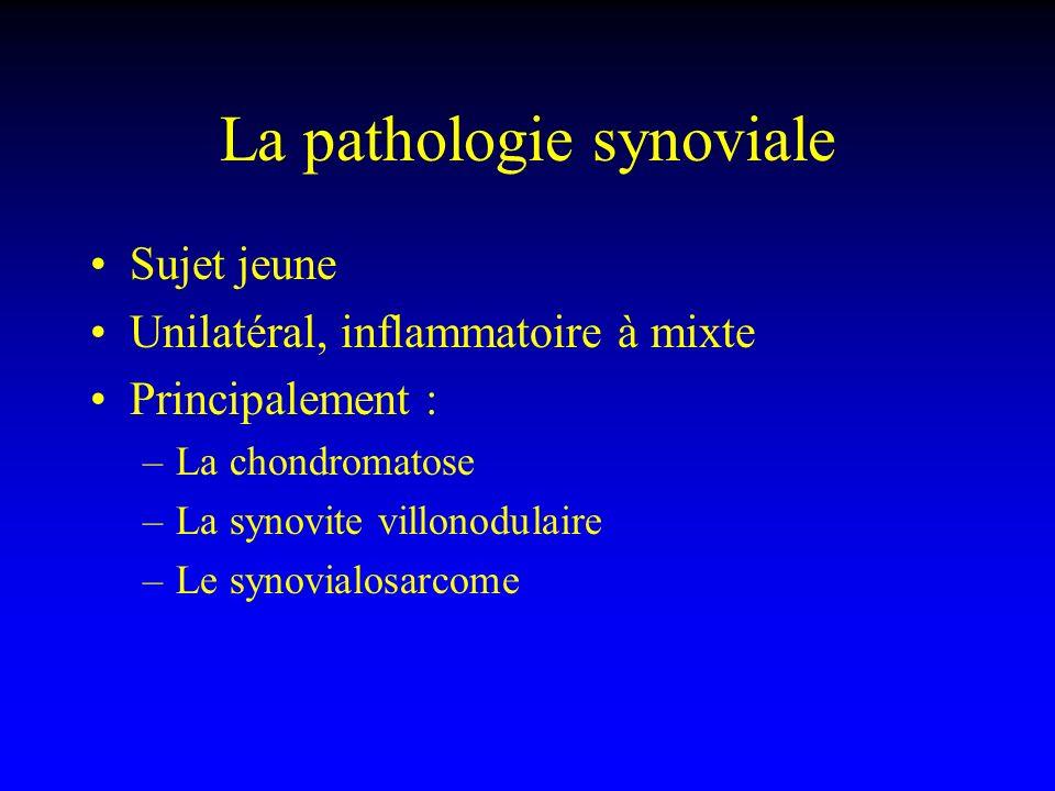 La pathologie synoviale Sujet jeune Unilatéral, inflammatoire à mixte Principalement : –La chondromatose –La synovite villonodulaire –Le synovialosarc