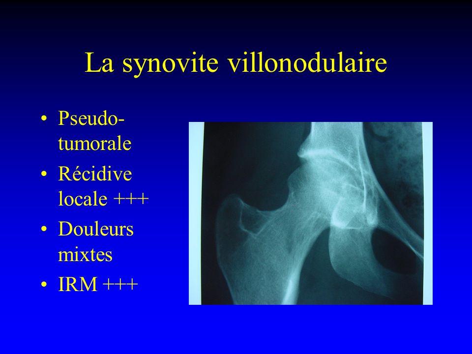 Pseudo- tumorale Récidive locale +++ Douleurs mixtes IRM +++ La synovite villonodulaire