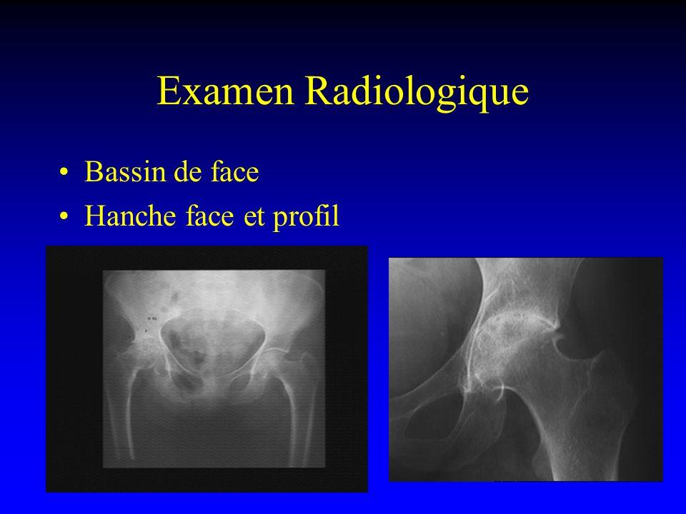 Examen Radiologique Echographie : opérateur dépendant TDM ou Arthro TDM : –Exploration osseuse –Recherche de corps étrangers IRM –Recherche de nécrose –Parties molles