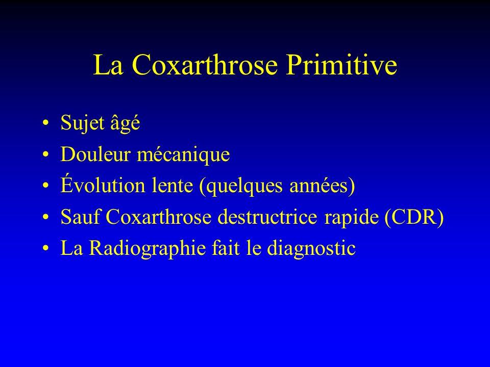 La Coxarthrose Primitive Sujet âgé Douleur mécanique Évolution lente (quelques années) Sauf Coxarthrose destructrice rapide (CDR) La Radiographie fait