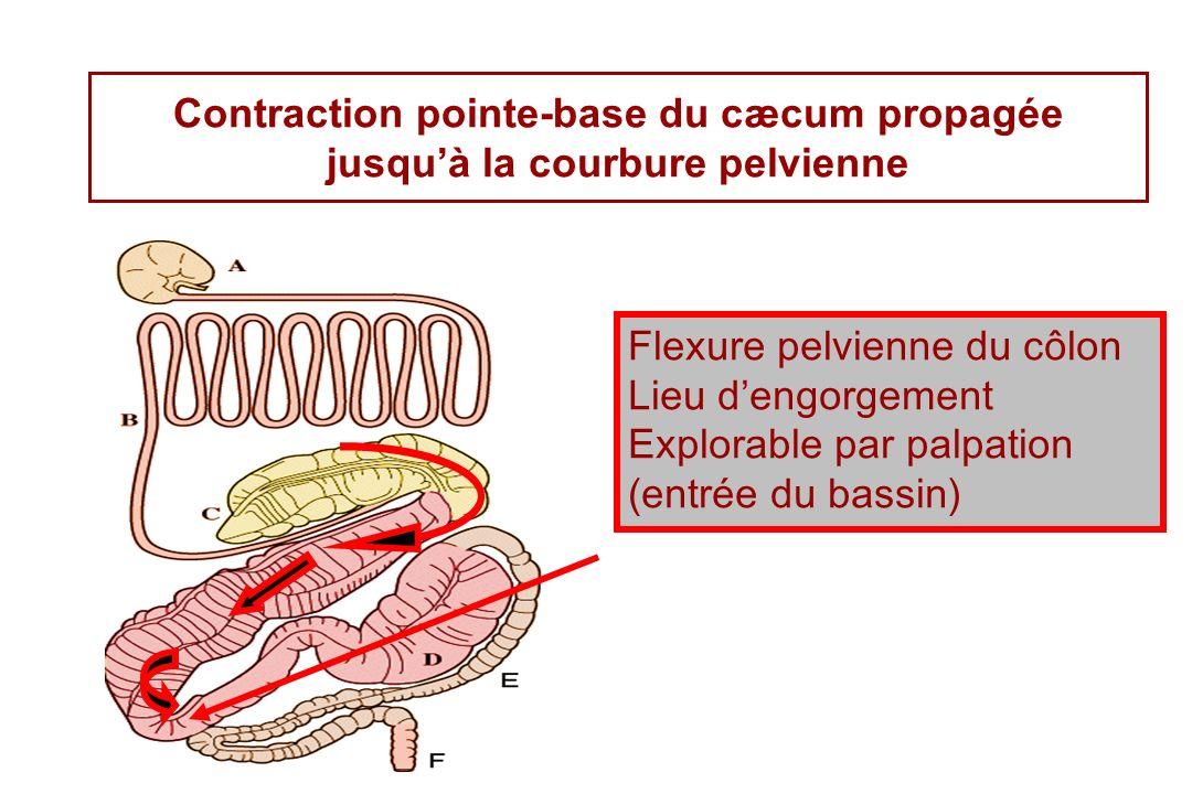 Contraction pointe-base du cæcum propagée jusquà la courbure pelvienne Flexure pelvienne du côlon Lieu dengorgement Explorable par palpation (entrée du bassin)