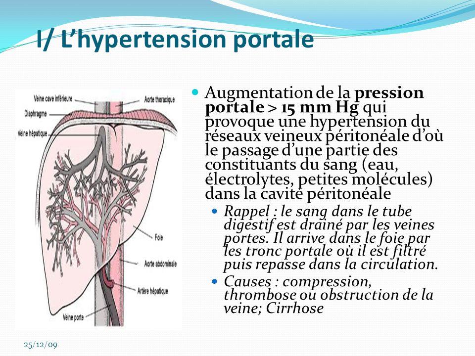 I/ Lhypertension portale Augmentation de la pression portale > 15 mm Hg qui provoque une hypertension du réseaux veineux péritonéale doù le passage du