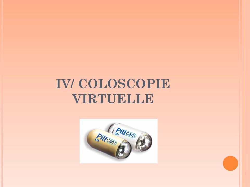 IV/ COLOSCOPIE VIRTUELLE