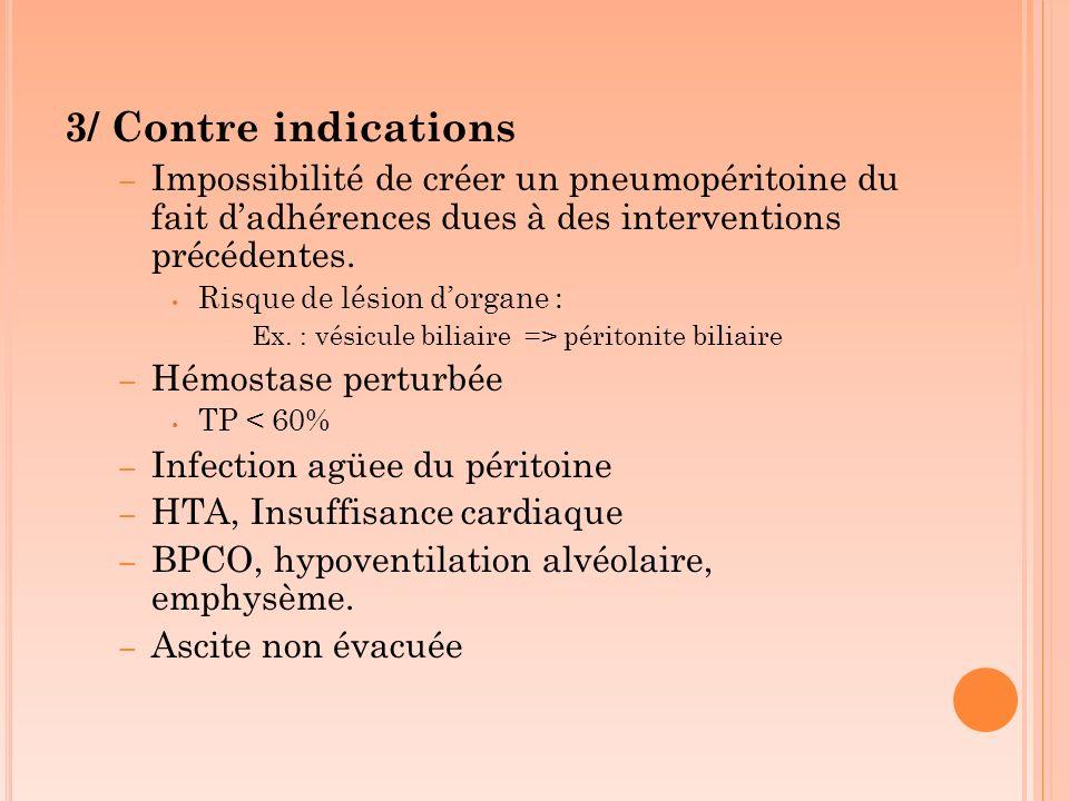 3/ Contre indications – Impossibilité de créer un pneumopéritoine du fait dadhérences dues à des interventions précédentes. Risque de lésion dorgane :