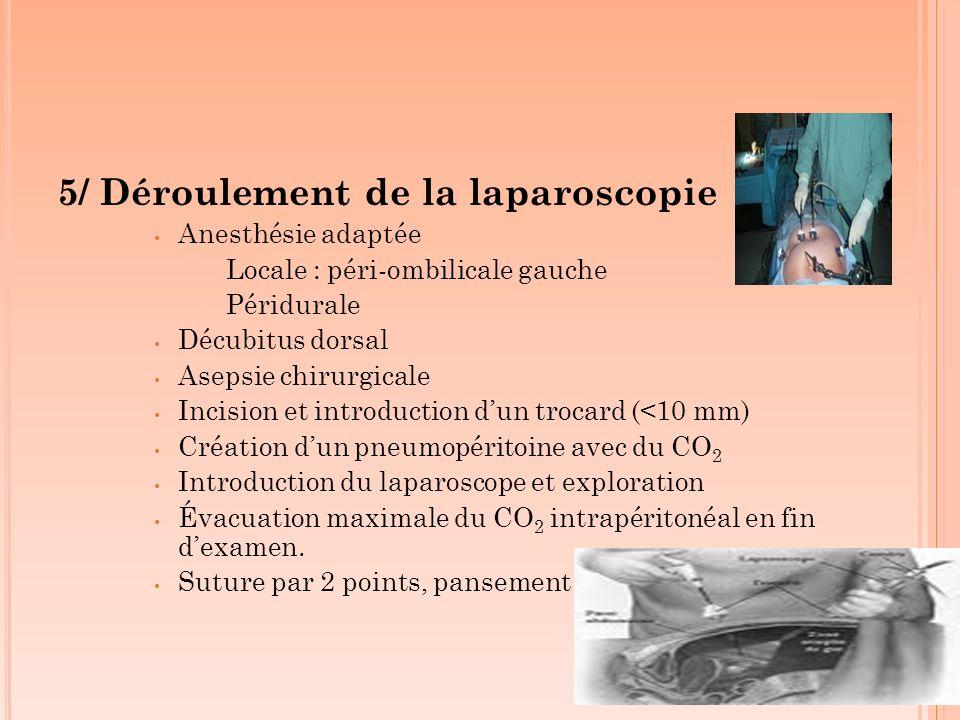 5/ Déroulement de la laparoscopie Anesthésie adaptée Locale : péri-ombilicale gauche Péridurale Décubitus dorsal Asepsie chirurgicale Incision et intr