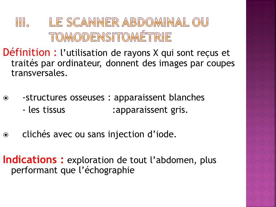 Définition : lutilisation de rayons X qui sont reçus et traités par ordinateur, donnent des images par coupes transversales.