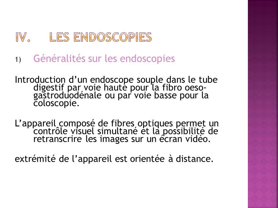 1) Généralités sur les endoscopies Introduction dun endoscope souple dans le tube digestif par voie haute pour la fibro oeso- gastroduodénale ou par voie basse pour la coloscopie.
