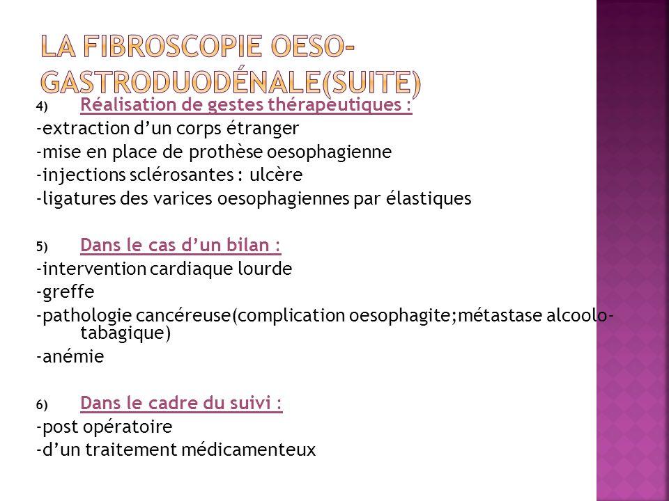 4) Réalisation de gestes thérapeutiques : -extraction dun corps étranger -mise en place de prothèse oesophagienne -injections sclérosantes : ulcère -l