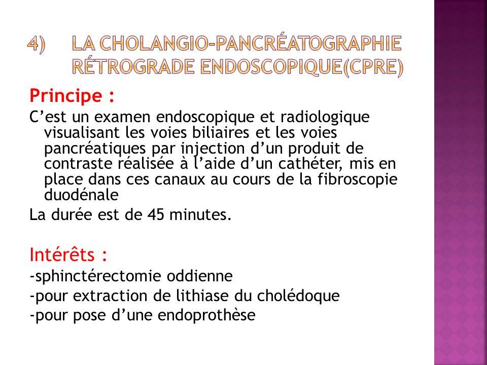 Principe : Cest un examen endoscopique et radiologique visualisant les voies biliaires et les voies pancréatiques par injection dun produit de contras