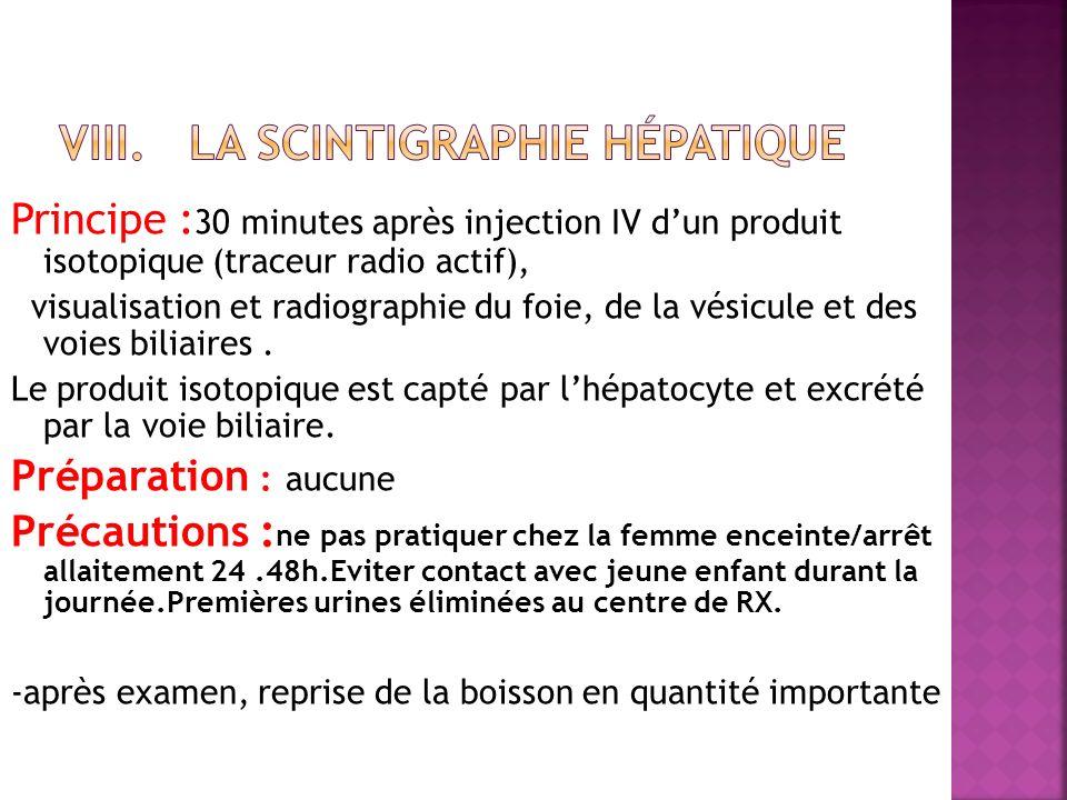 Principe : 30 minutes après injection IV dun produit isotopique (traceur radio actif), visualisation et radiographie du foie, de la vésicule et des vo