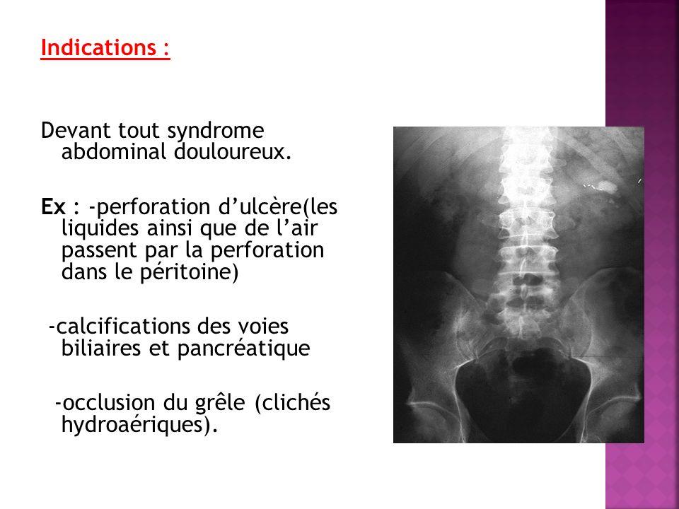 Indications : Devant tout syndrome abdominal douloureux. Ex : -perforation dulcère(les liquides ainsi que de lair passent par la perforation dans le p