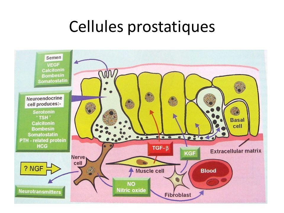 HBP physiopathologie HBP : adénomyome => augmentation taille => obstruction => symptomes mictionnels mais linverse nest pas vrai...