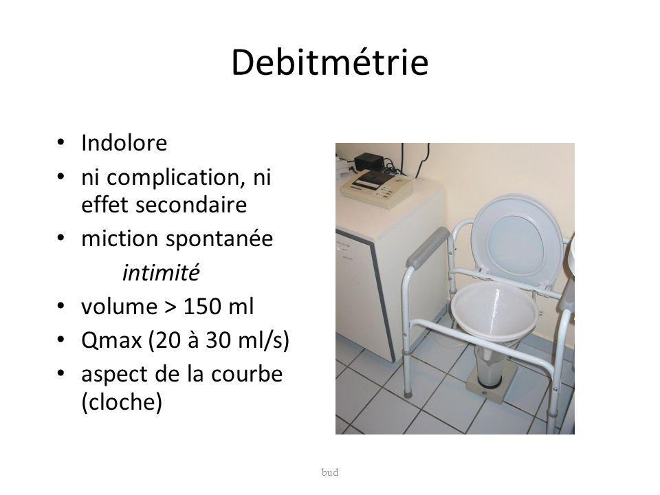 Debitmétrie Indolore ni complication, ni effet secondaire miction spontanée intimité volume > 150 ml Qmax (20 à 30 ml/s) aspect de la courbe (cloche)