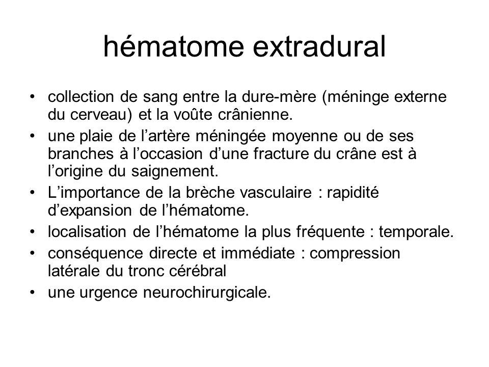 hématome extradural collection de sang entre la dure-mère (méninge externe du cerveau) et la voûte crânienne. une plaie de lartère méningée moyenne ou