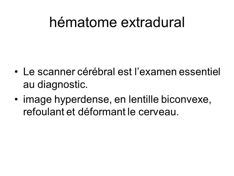 hématome extradural Le scanner cérébral est lexamen essentiel au diagnostic. image hyperdense, en lentille biconvexe, refoulant et déformant le cervea