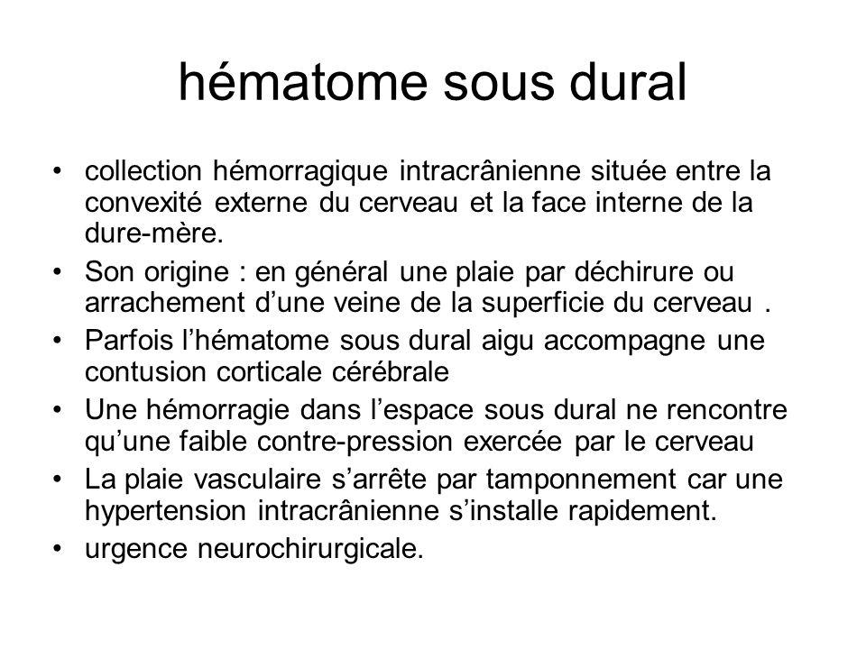 hématome sous dural collection hémorragique intracrânienne située entre la convexité externe du cerveau et la face interne de la dure-mère. Son origin