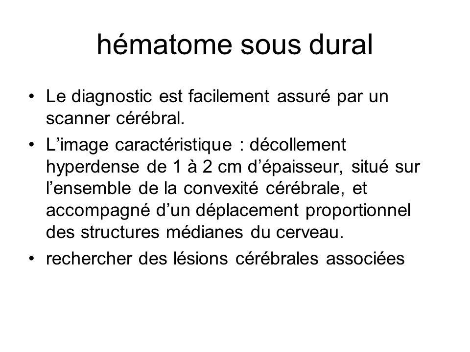 hématome sous dural Le diagnostic est facilement assuré par un scanner cérébral. Limage caractéristique : décollement hyperdense de 1 à 2 cm dépaisseu