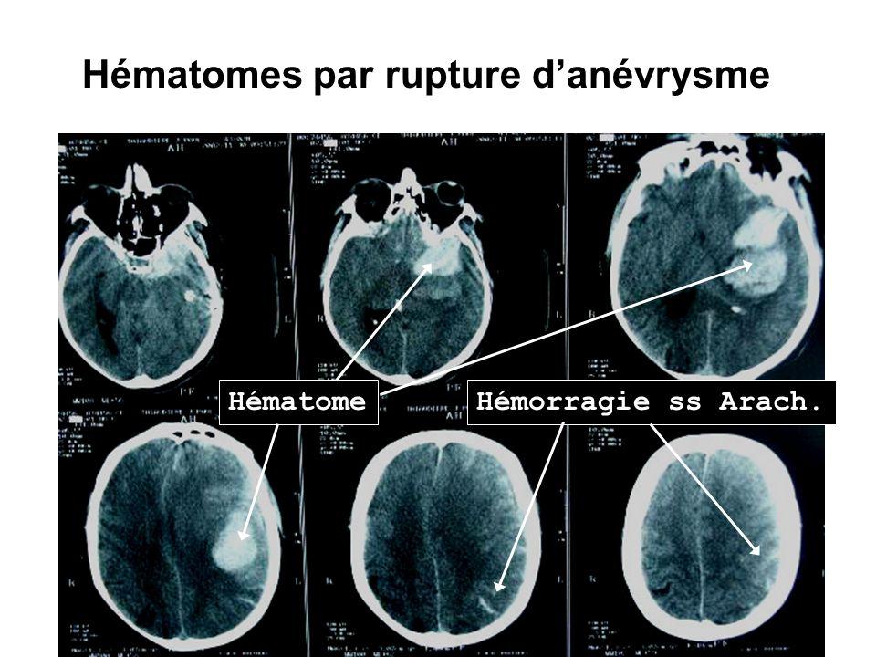 Hématomes par rupture danévrysme Hématome Hémorragie ss Arach.