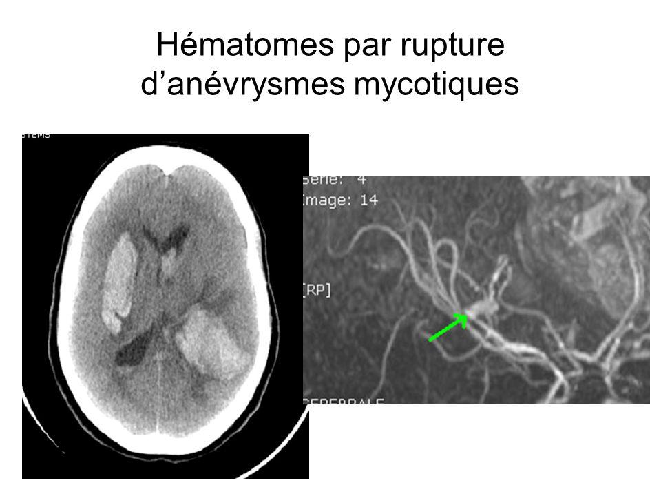 Hématomes par rupture danévrysmes mycotiques