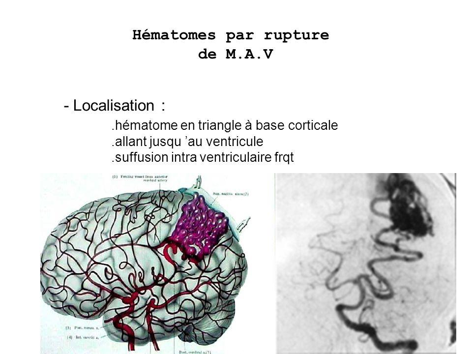 - Localisation :.hématome en triangle à base corticale.allant jusqu au ventricule.suffusion intra ventriculaire frqt Hématomes par rupture de M.A.V