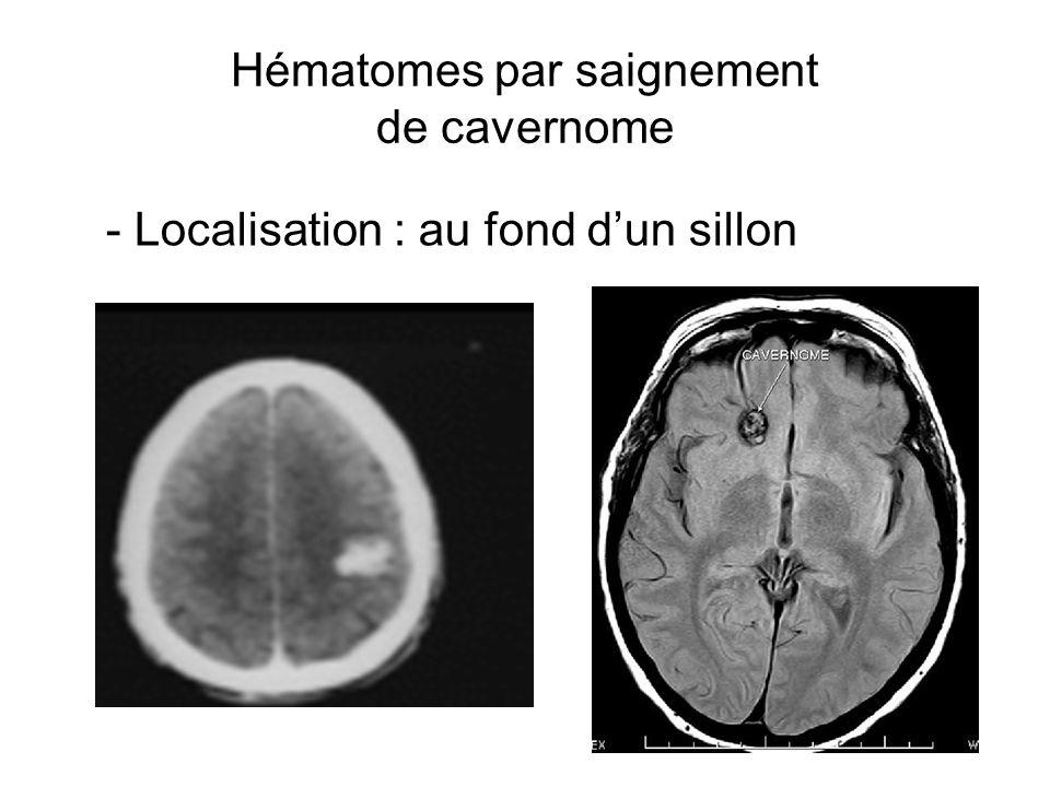 Hématomes par saignement de cavernome - Localisation : au fond dun sillon