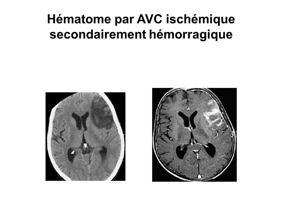 Hématome par AVC ischémique secondairement hémorragique J7 J13