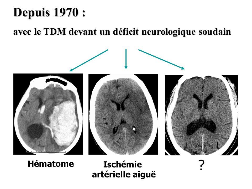 Depuis 1970 : avec le TDM devant un déficit neurologique soudain Hématome Ischémie artérielle aiguë ?
