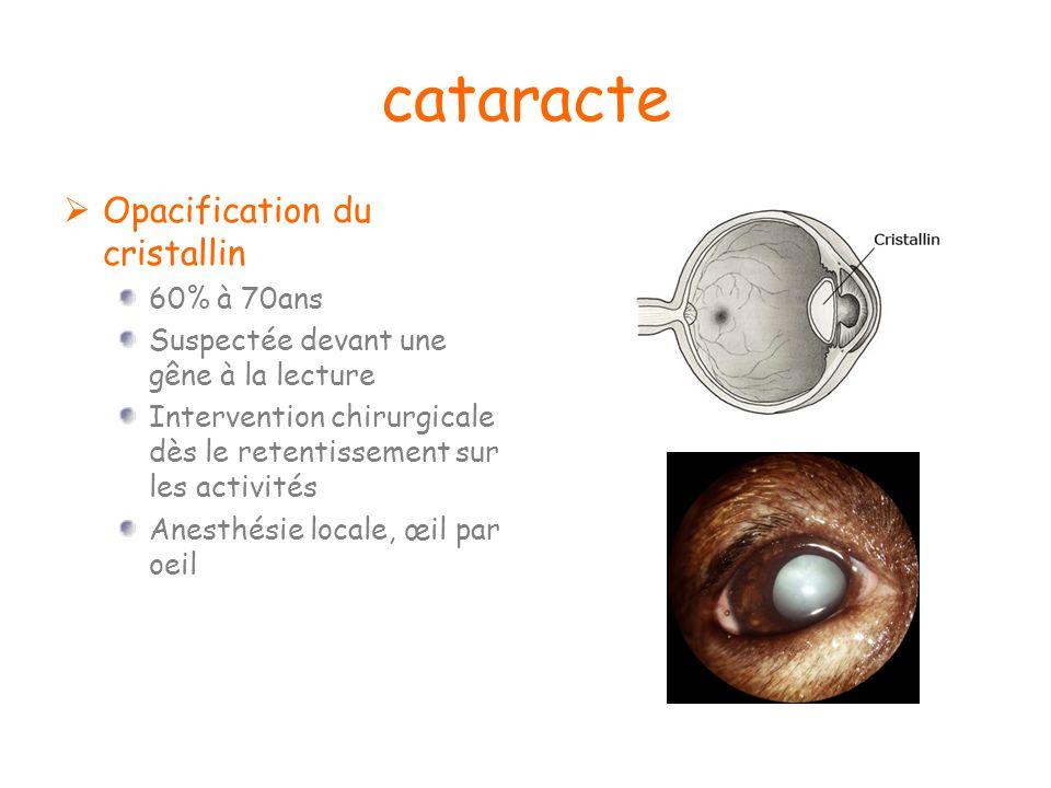 cataracte Opacification du cristallin 60% à 70ans Suspectée devant une gêne à la lecture Intervention chirurgicale dès le retentissement sur les activ