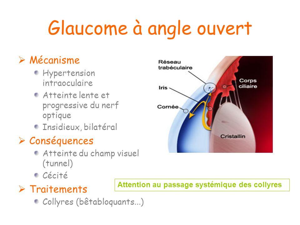 Glaucome à angle ouvert Mécanisme Hypertension intraoculaire Atteinte lente et progressive du nerf optique Insidieux, bilatéral Conséquences Atteinte