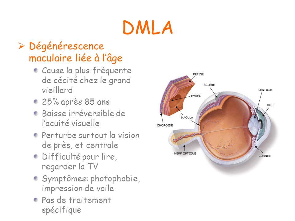 DMLA Dégénérescence maculaire liée à lâge Cause la plus fréquente de cécité chez le grand vieillard 25% après 85 ans Baisse irréversible de lacuité vi