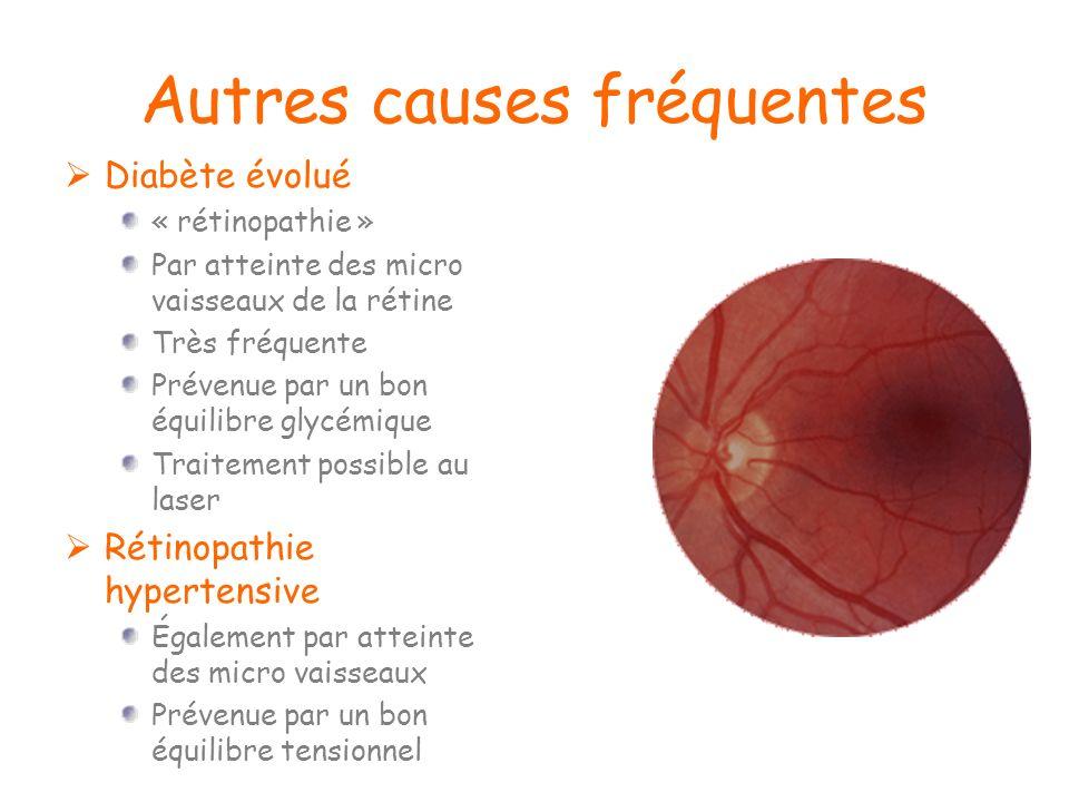 Autres causes fréquentes Diabète évolué « rétinopathie » Par atteinte des micro vaisseaux de la rétine Très fréquente Prévenue par un bon équilibre gl