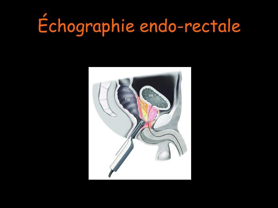 Échographie endo-rectale