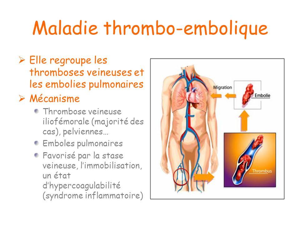 Maladie thrombo-embolique Elle regroupe les thromboses veineuses et les embolies pulmonaires Mécanisme Thrombose veineuse iliofémorale (majorité des c