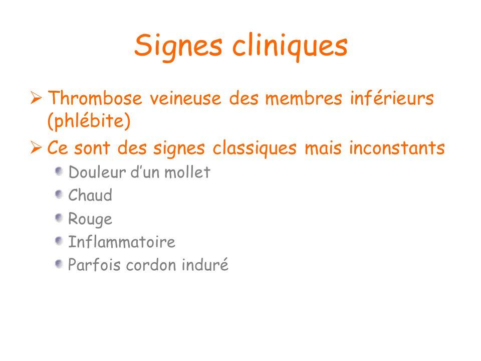 Signes cliniques Thrombose veineuse des membres inférieurs (phlébite) Ce sont des signes classiques mais inconstants Douleur dun mollet Chaud Rouge In