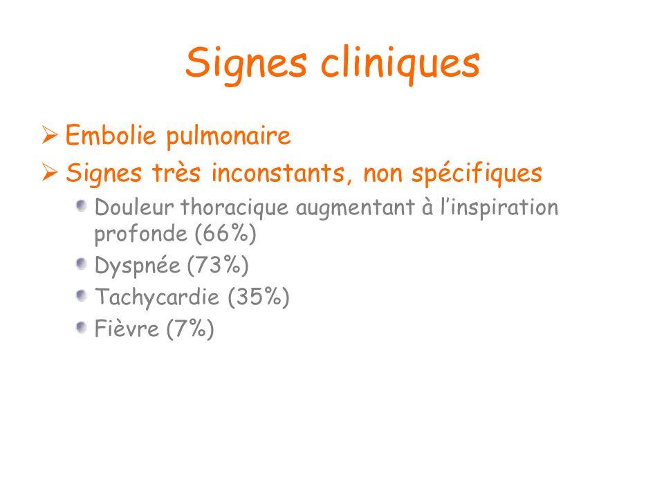 Signes cliniques Embolie pulmonaire Signes très inconstants, non spécifiques Douleur thoracique augmentant à linspiration profonde (66%) Dyspnée (73%)
