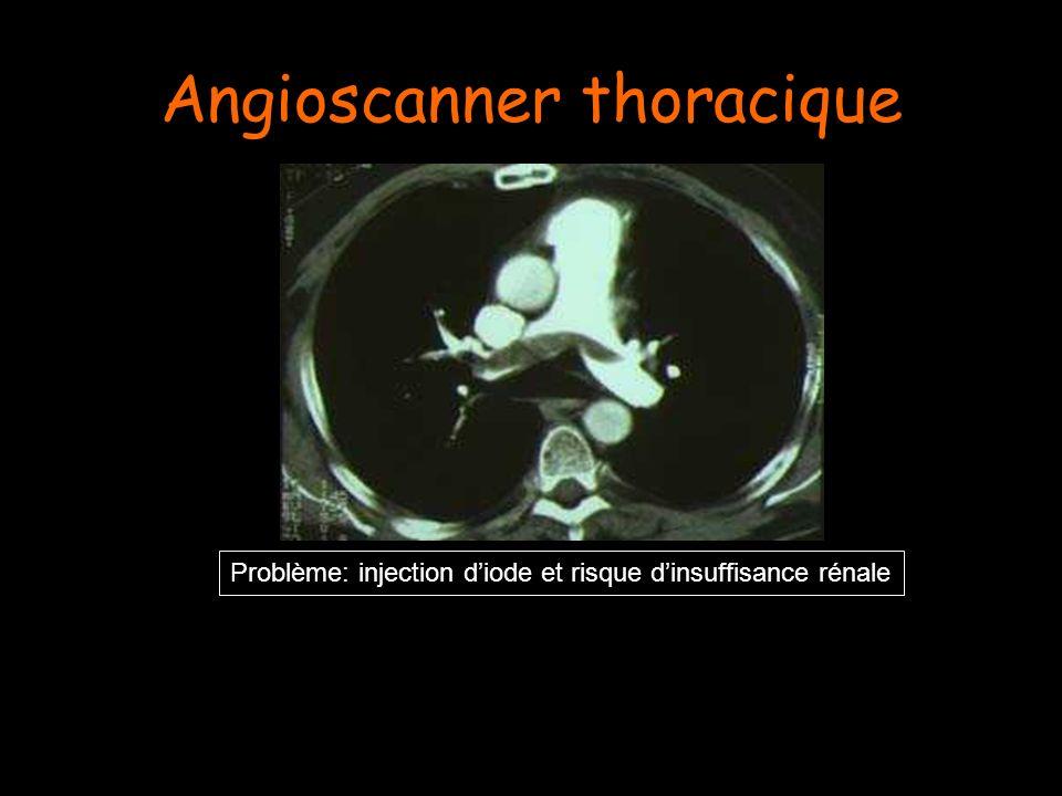 Angioscanner thoracique Problème: injection diode et risque dinsuffisance rénale
