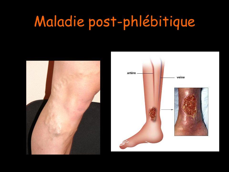 Maladie post-phlébitique