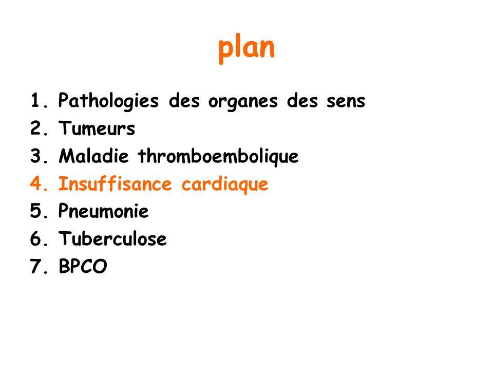 plan 1.Pathologies des organes des sens 2.Tumeurs 3.Maladie thromboembolique 4.Insuffisance cardiaque 5.Pneumonie 6.Tuberculose 7.BPCO
