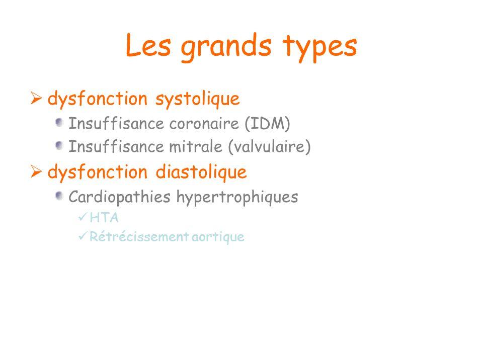 Les grands types dysfonction systolique Insuffisance coronaire (IDM) Insuffisance mitrale (valvulaire) dysfonction diastolique Cardiopathies hypertrop