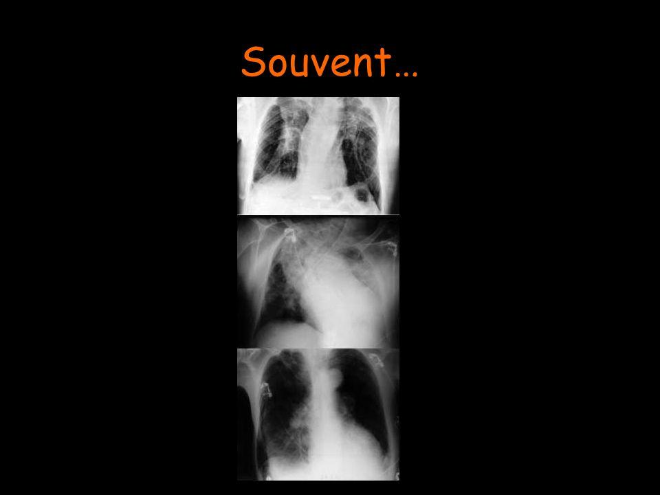 Souvent…