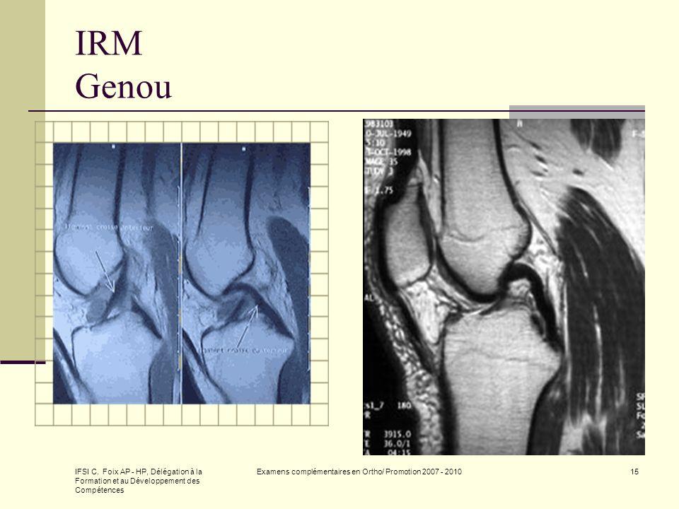 IFSI C. Foix AP - HP, Délégation à la Formation et au Développement des Compétences Examens complémentaires en Ortho/ Promotion 2007 - 201015 IRM Geno