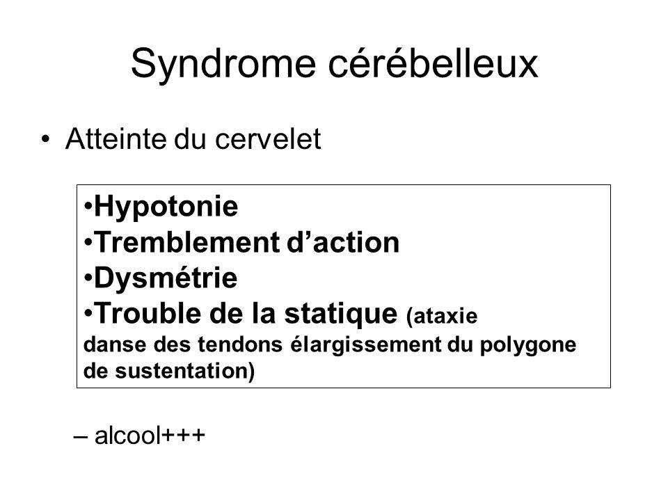 Syndrome cérébelleux Atteinte du cervelet –alcool+++ Hypotonie Tremblement daction Dysmétrie Trouble de la statique (ataxie danse des tendons élargiss
