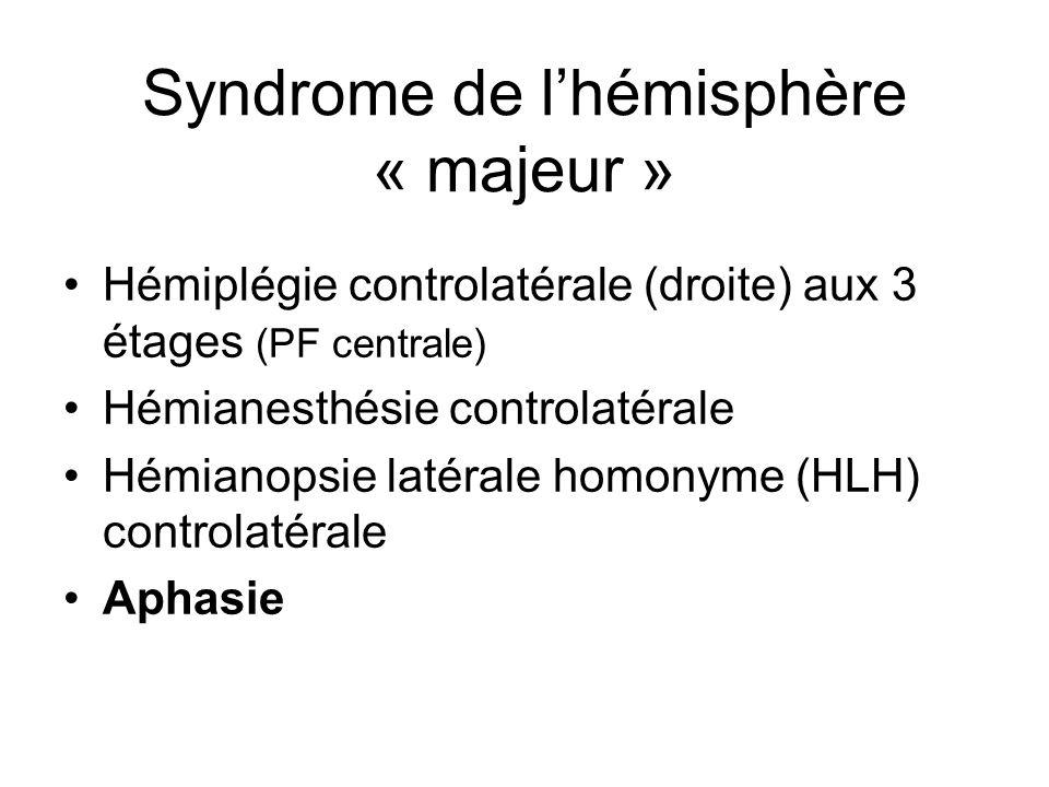 Syndrome de lhémisphère « majeur » Hémiplégie controlatérale (droite) aux 3 étages (PF centrale) Hémianesthésie controlatérale Hémianopsie latérale ho