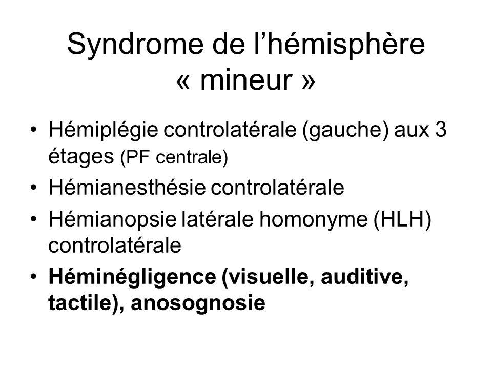 Syndrome de lhémisphère « mineur » Hémiplégie controlatérale (gauche) aux 3 étages (PF centrale) Hémianesthésie controlatérale Hémianopsie latérale ho