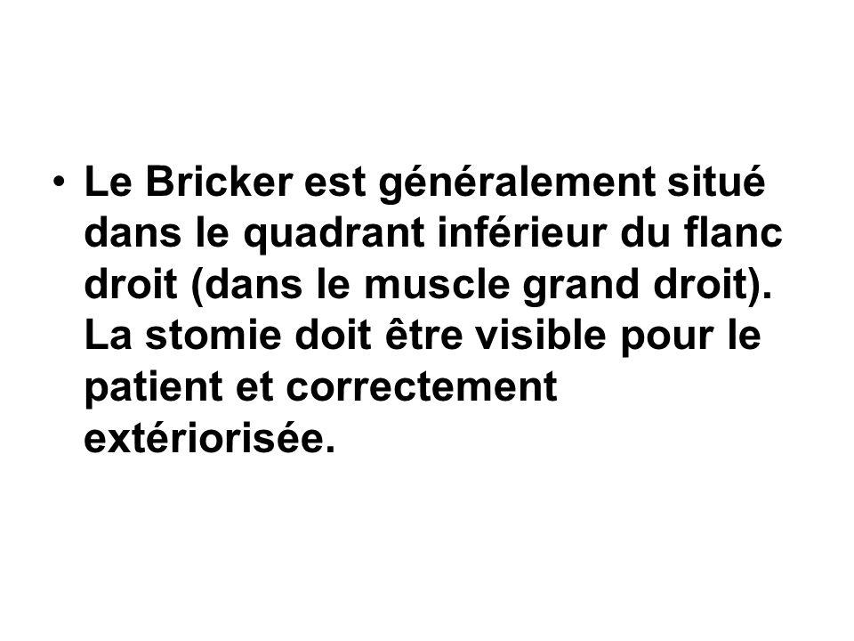 Le Bricker est généralement situé dans le quadrant inférieur du flanc droit (dans le muscle grand droit). La stomie doit être visible pour le patient