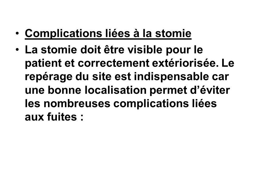 Complications liées à la stomie La stomie doit être visible pour le patient et correctement extériorisée. Le repérage du site est indispensable car un