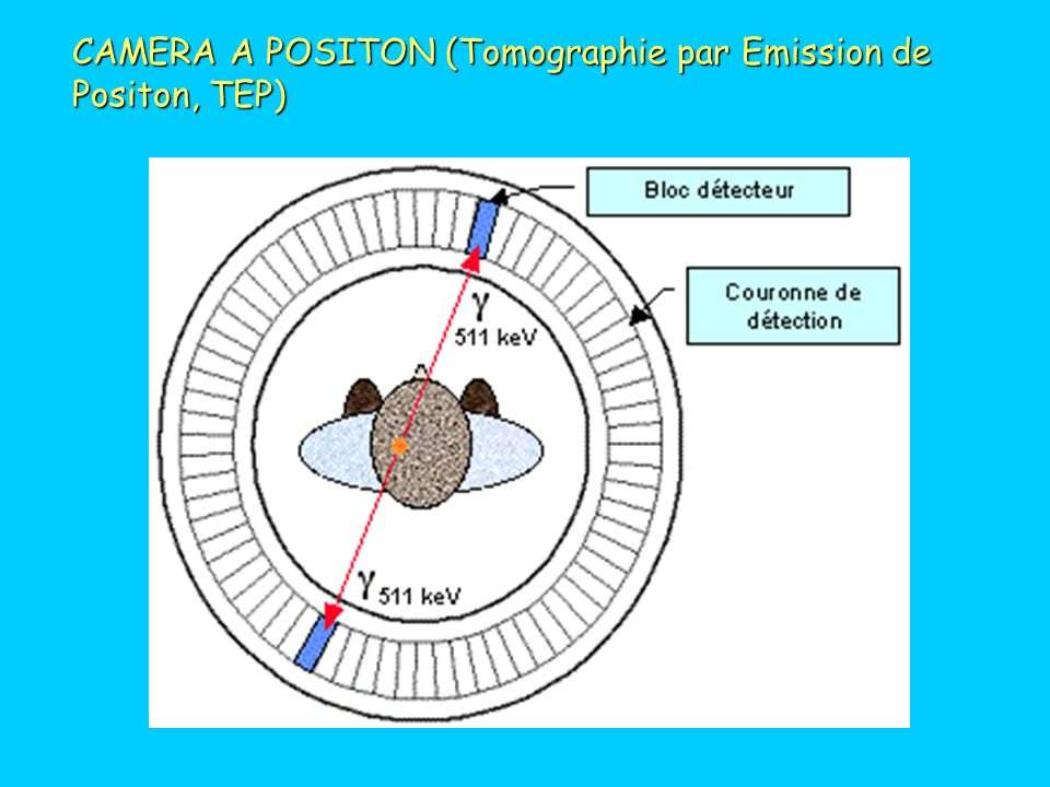 CYCLOTRON PRÉPARATION DE RADIO-ISOTOPES : CYCLOTRON 18 F p 18 O (positon)