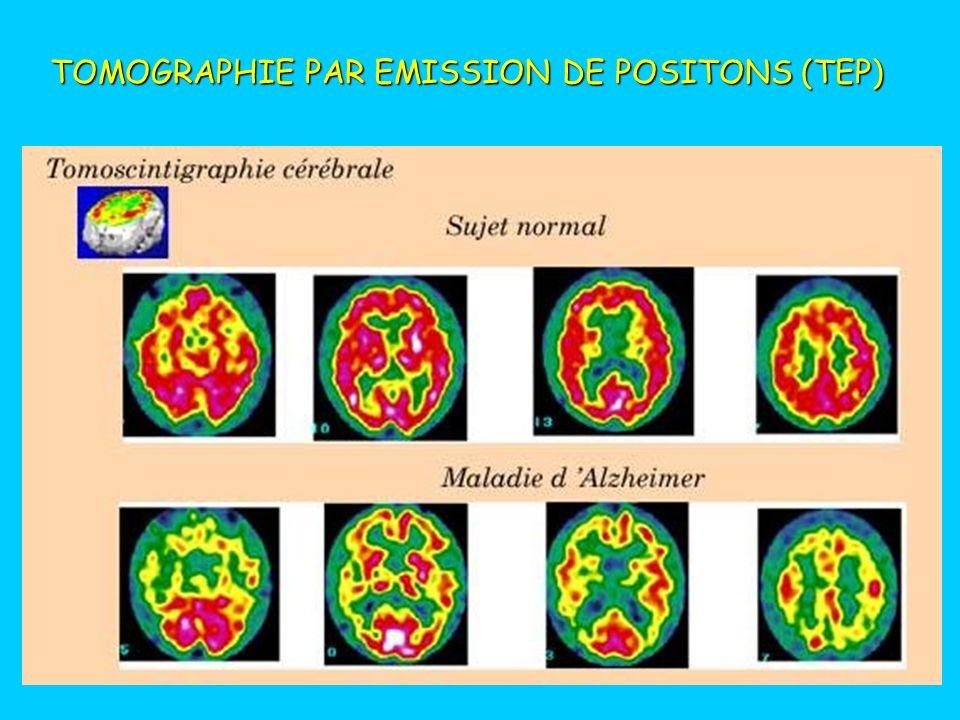 TOMOGRAPHIE PAR EMISSION DE POSITONS (TEP) Examen du fonctionnement du cœur
